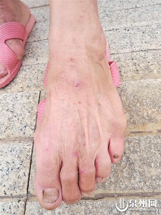 一个上午惠安三人被红火蚁咬伤 提醒:被叮咬后先冷敷